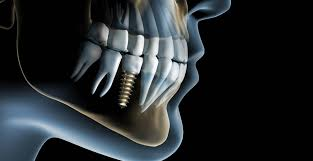 gps dental implants newport beach